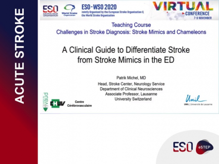 A Clinical Guide to Differentiate Stroke from Mimics in the ED